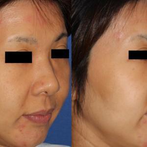レインボーライト 美肌治療