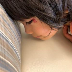 幼稚園で怪我*4~5針縫う(写真あり)