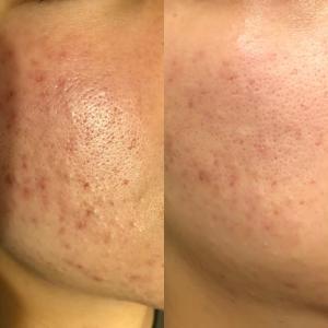 アトピー肌&マスクの肌荒れは「ハーブ療法」で