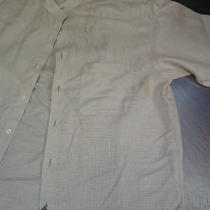 デザインシャツの黄ばみ汚れ