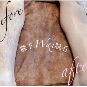 Wax脱毛◆before ⇒ after 編◆