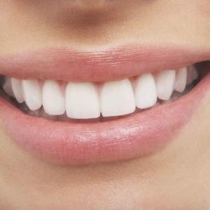 「歯を黄色くする食べ物」には、カレー以外にどんな食べ物があると思いますか?