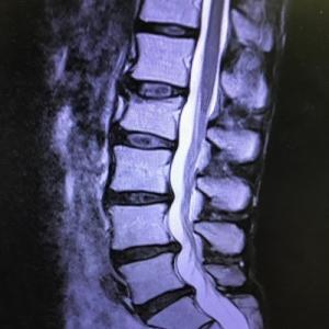 腰椎神経根障害?