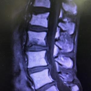 骨折のドミノ現象