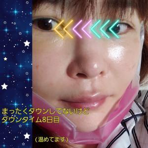 整形ダウンタイム中「1週間歯磨き禁止チャレンジ」の結果!