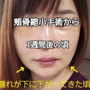 顔がイッキにシンデレラ化!「Vラインマスク」酷いむくみに使ってみたら…