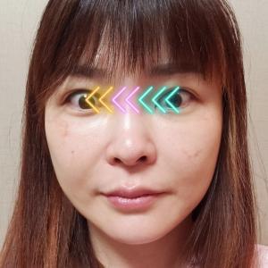 整形手術の想定外な二次効果!【頬骨縮小手術】腫れの引いていく過程(手術直後から1ヶ月まで)
