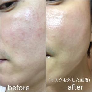 「切実な肌の不快が即解消」韓国コスメはここまでできる!【BEBALANCE アズレンマスク】