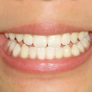 セラミック治療にかかった費用にびっくり!50代からは歯周病に要注意です