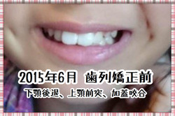 3年4ヶ月の歯列矯正での変化を写真で確認。