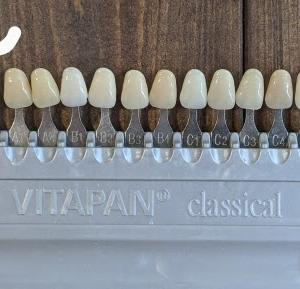 歯のホワイトニングしても殆ど変化なし。