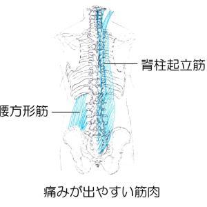 ギックリ腰の治療法 たかだ鍼灸接骨院