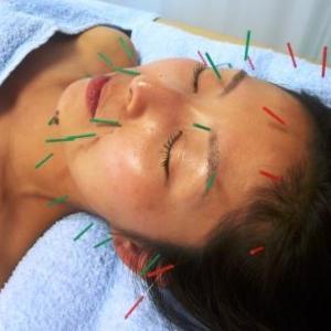 美容鍼灸Q&A : たかだ鍼灸接骨院