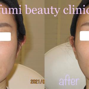 ヒアルロン酸治療で若さと美しさをキープ