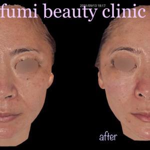 ヒアルロン酸でリフトアップ&お顔バランスを綺麗に(3D写真)