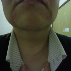 1305:皮膚炎のせいで少し目立つかなあ??(泣)