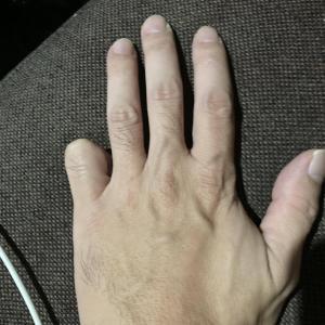 【画像】小指飛ばしてるけどなんかある? #指 #小指