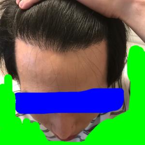 植毛から早2年経ちました。総括。
