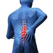 「急性腰痛」が起こるきっかけ