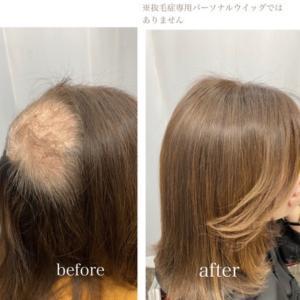 【施術内容の全て】抜毛症に特化した美容師
