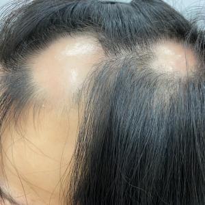 脱毛症に対応する美容師