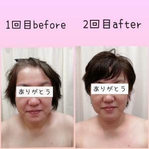 別人級の変化!!【小顔&美肌フェイシャルモニター】