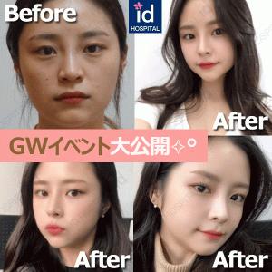 韓国id美容外科のお得なイベント、一挙大公開!✧˖°