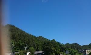 本日の天気