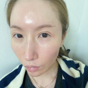 ミッション:肌の赤みを消せ