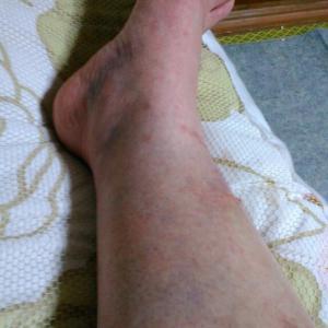 右足が腫れてます