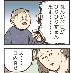 初めての口内炎