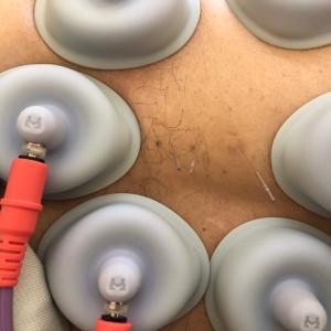 帯状疱疹後神経痛予防の鍼