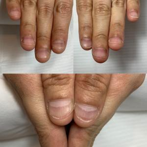深爪育成1ヶ月の変化