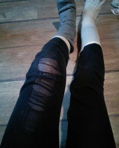 高齢出産から1年半 最近の毒だし 膝