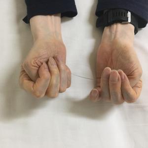 左手の小指のMPがだいぶ曲がるようになってきた。