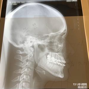 口腔外科受診 オペまであと103days