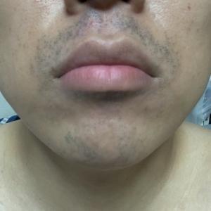 ゴリラクリニックで髭脱毛18回目から約三か月。