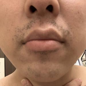 ゴリラクリニックで髭脱毛19回目。
