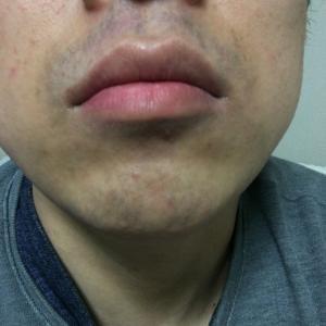 ゴリラクリニックで髭脱毛15回目から約2カ月半。