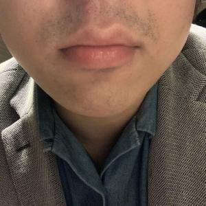 ゴリラクリニックで髭脱毛16回目から約一カ月。