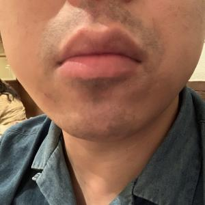 ゴリラクリニックで髭脱毛16回目から約二カ月。