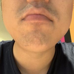 ゴリラクリニックで髭脱毛17回目から約一週間。