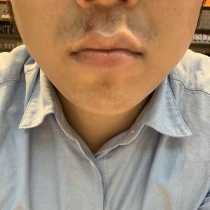 ゴリラクリニックで髭脱毛17回目から約一カ月。
