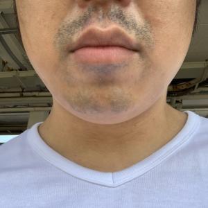 ゴリラクリニックで髭脱毛17回目から約一カ月半