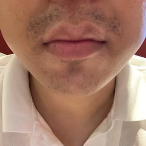 ゴリラクリニックで髭脱毛17回目から約二カ月。