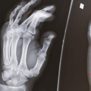 全治3ヶ月!? 怪我の具合と病院の対応…