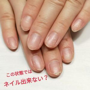 爪が傷んでいるのでネイルができないと思っていました!千葉市からのお客様
