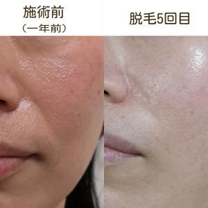 お顔脱毛+塗る針ケアクリームの相乗効果で美肌への道が加速する!!