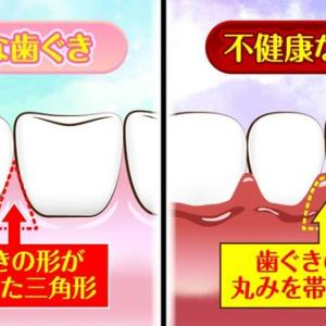 歯ぐきの変色は○○のサイン?!