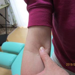 花粉症克服整体で「9月の花粉症」もスッキリ改善